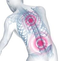 bad-posture-osteoporosis