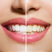 whiten-teeth-build-bones